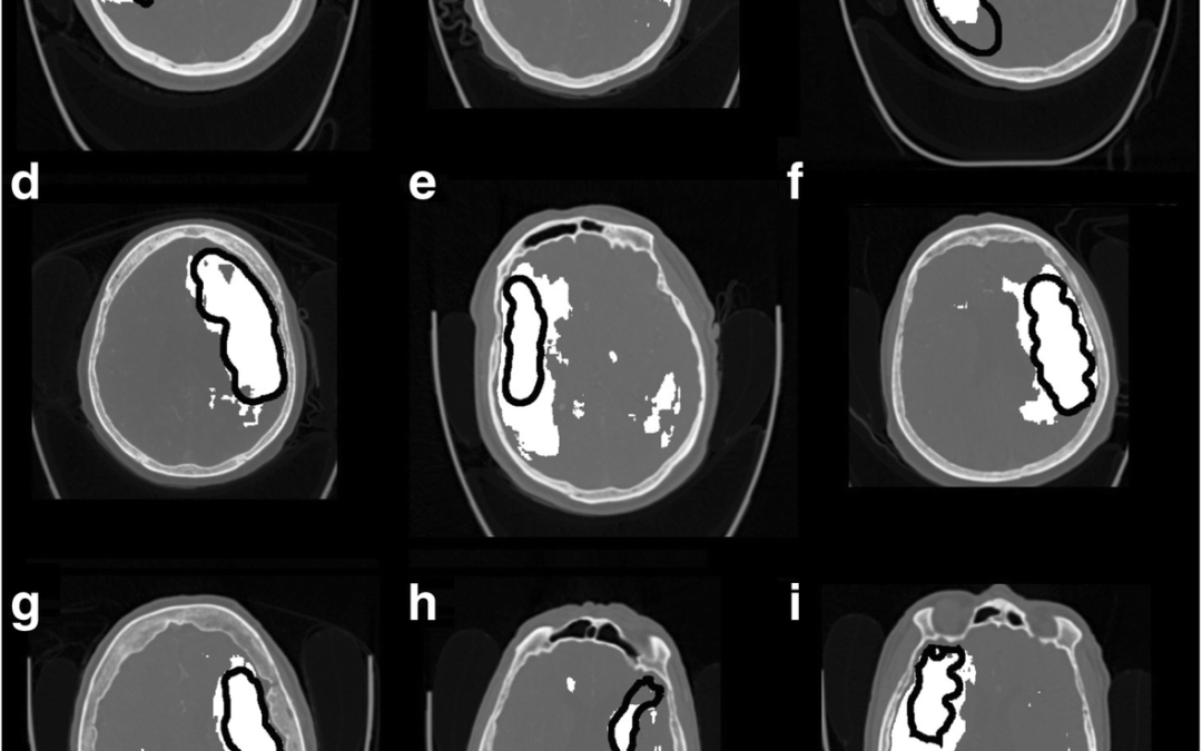 Applying 3D CNN to CTA source images to detect ischemic stroke
