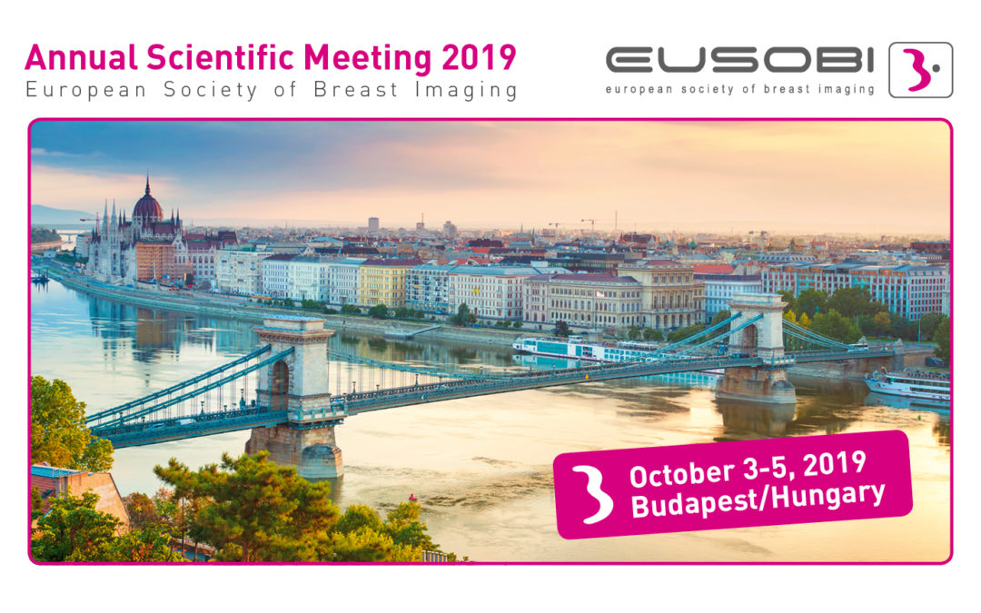 The potential of AI in breast imaging revealed at EUSOBI 2019