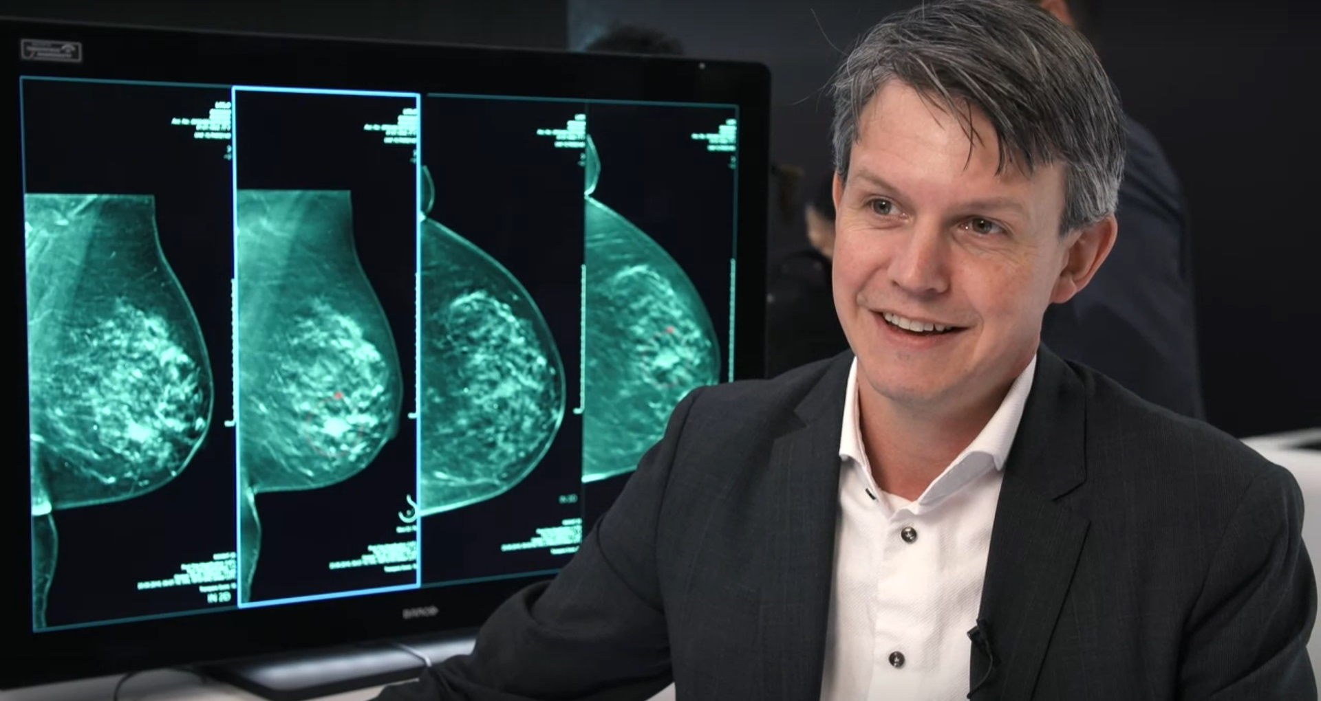 AI in Risk-Based Breast Screening