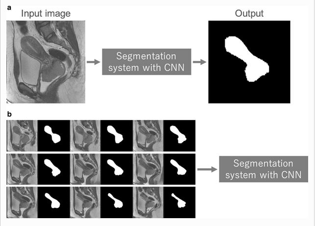 Convolutional neural networks: an overview and application in radiology
