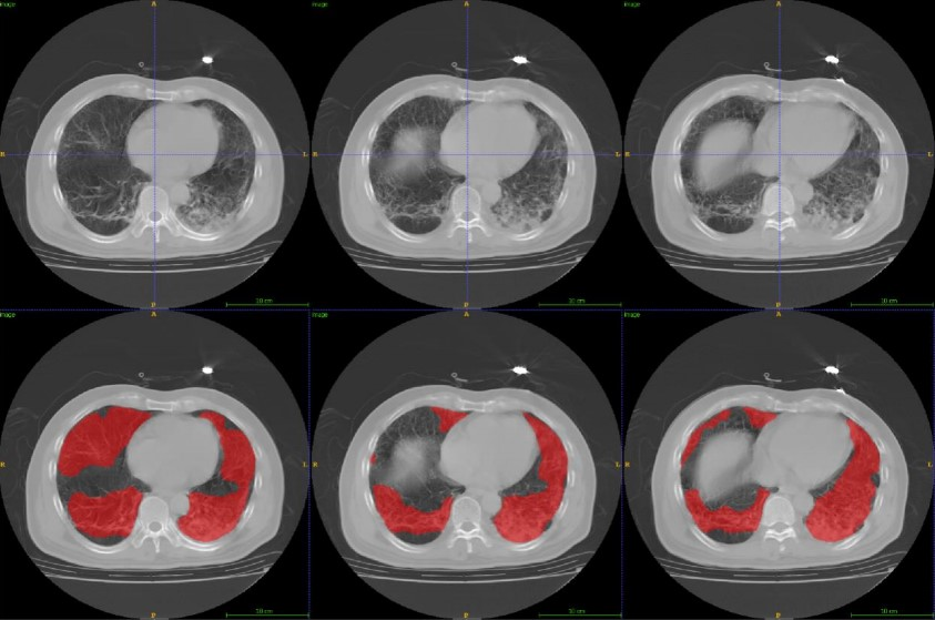 From community-acquired pneumonia to COVID-19: a deep learning–based method for quantitative analysis of COVID-19 on thick-section CT scans