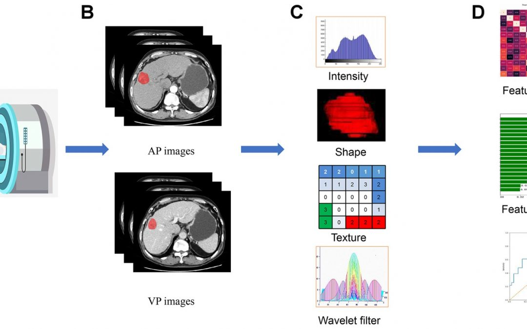 Preoperative prediction for pathological grade of hepatocellular carcinoma via machine learning–based radiomics