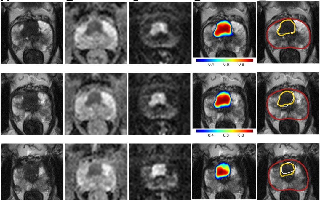 Simulated clinical deployment of fully automatic deep learning for clinical prostate MRI assessment