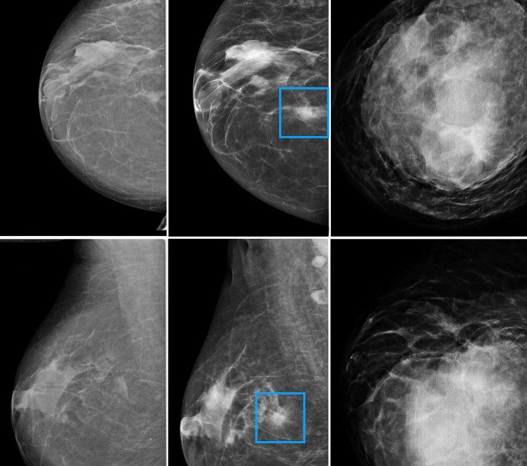 The promising possibility of using AI in mammography screening