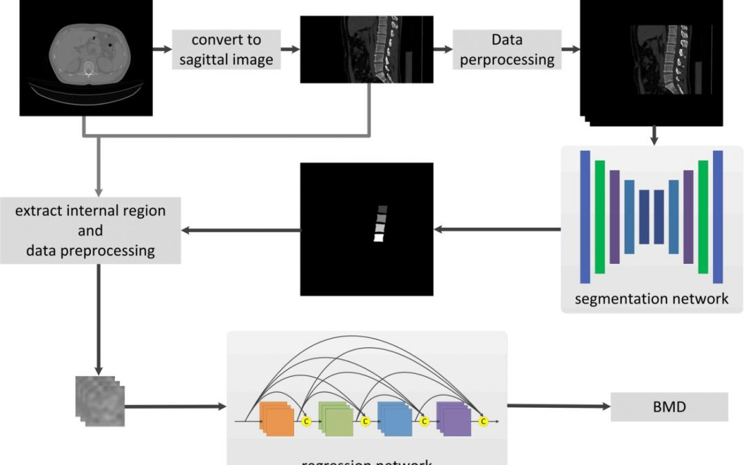 Opportunistic osteoporosis screening in multi-detector CT images using deep convolutional neural networks