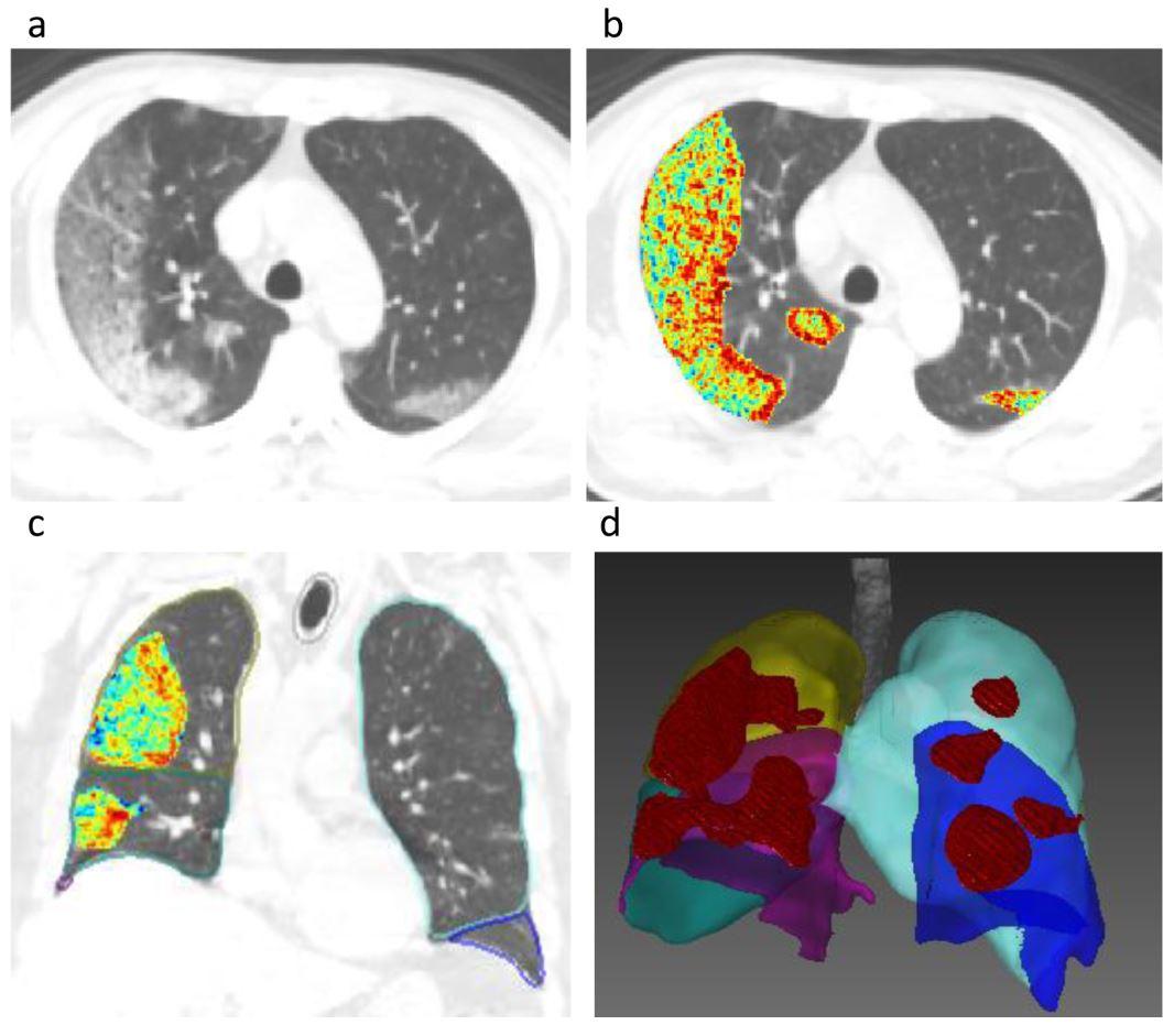 Development and multicenter validation of a CT-based radiomics signature for predicting severe COVID-19 pneumonia