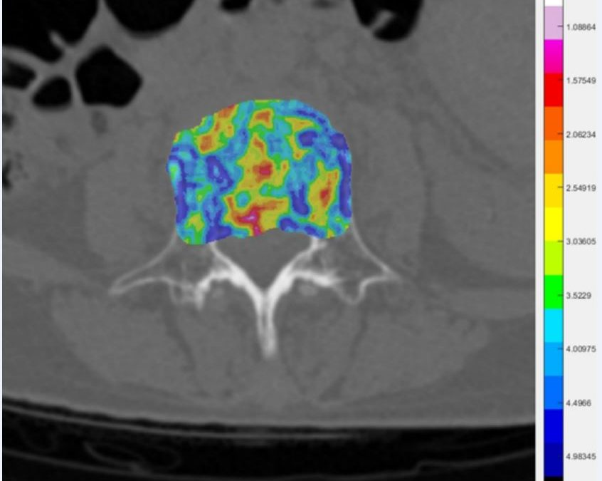 Combined radiomics-clinical model to predict malignancy of vertebral compression fractures on CT