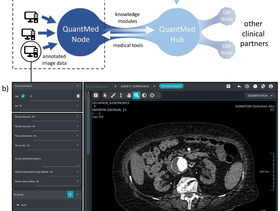 Automated segmentation and quantification of the healthy and diseased aorta in CT angiographies using a dedicated deep learning approach
