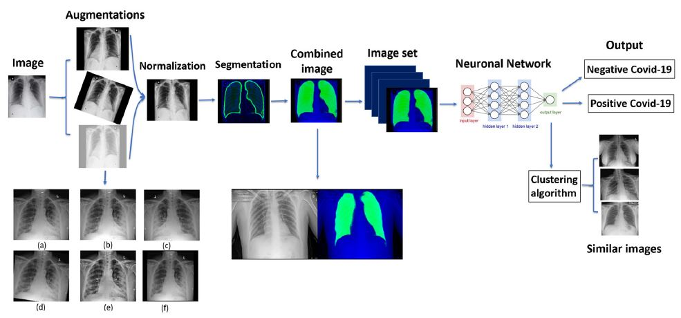 COVID-19 classification of X-ray images using deep neural networks