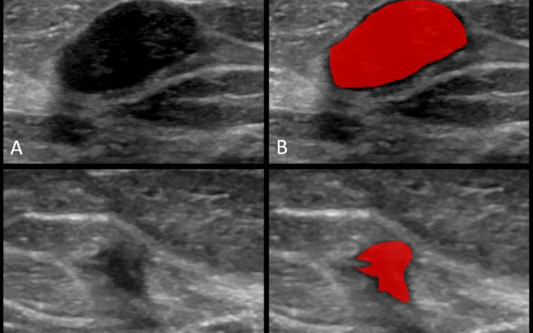 Clinical value of radiomics and machine learning in breast ultrasound: a multicenter study for differential diagnosis of benign and malignant lesions