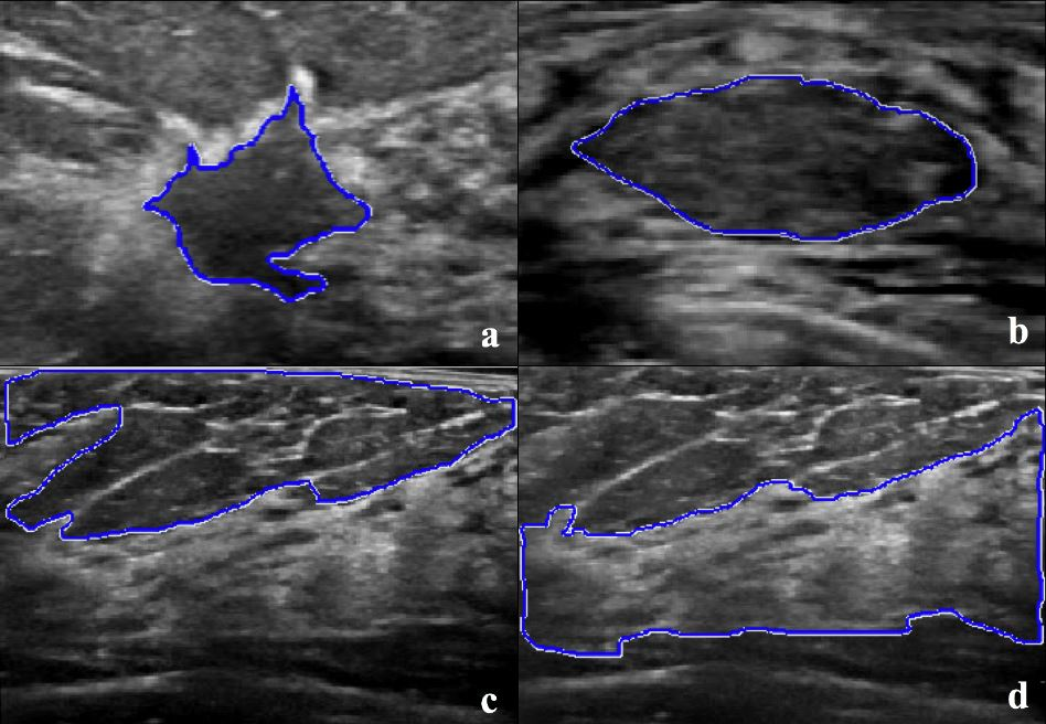 A pilot study on the performance of machine learning appled to texture-analysis-derived features for breast lesion characterisation at ABUS
