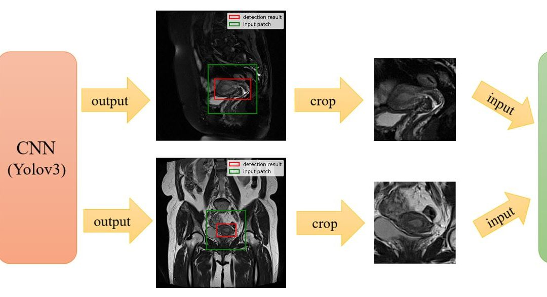 Deep learning for the determination of myometrial invasion depth and automatic lesion identification in endometrial cancer MR imaging