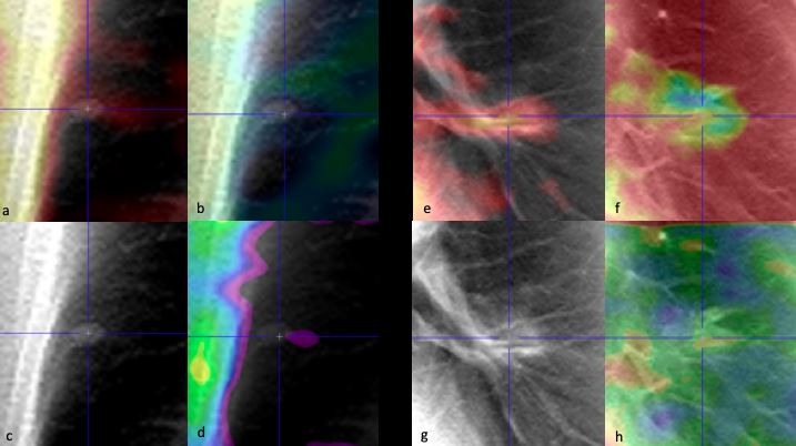 Artificial intelligence and radiomics enhance the positive predictive value of digital chest tomosynthesis for lung cancer detection within SOS clinical trial