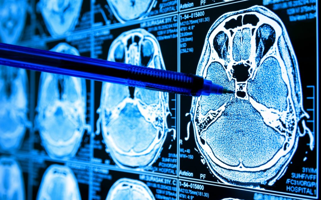'Solutions are needed to do more with less': How AI is transforming radiology