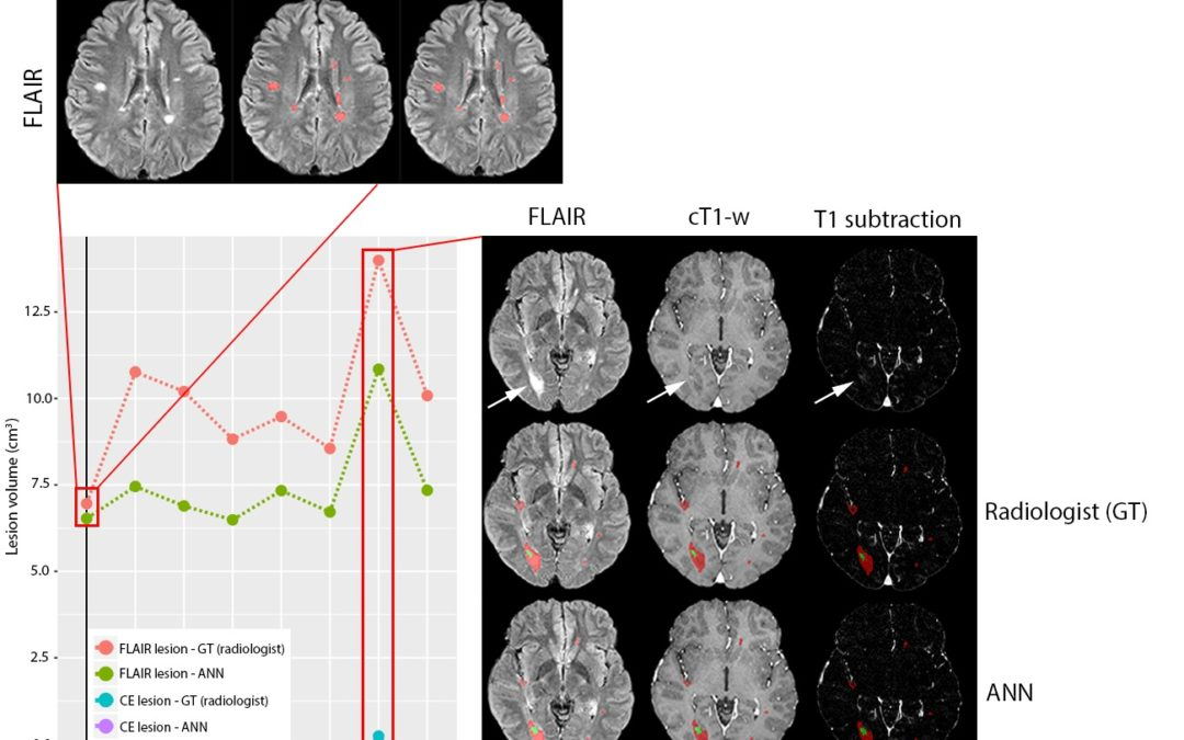 Automated volumetric assessment with artificial neural networks might enable a more accurate assessment of disease burden in patients with multiple sclerosis