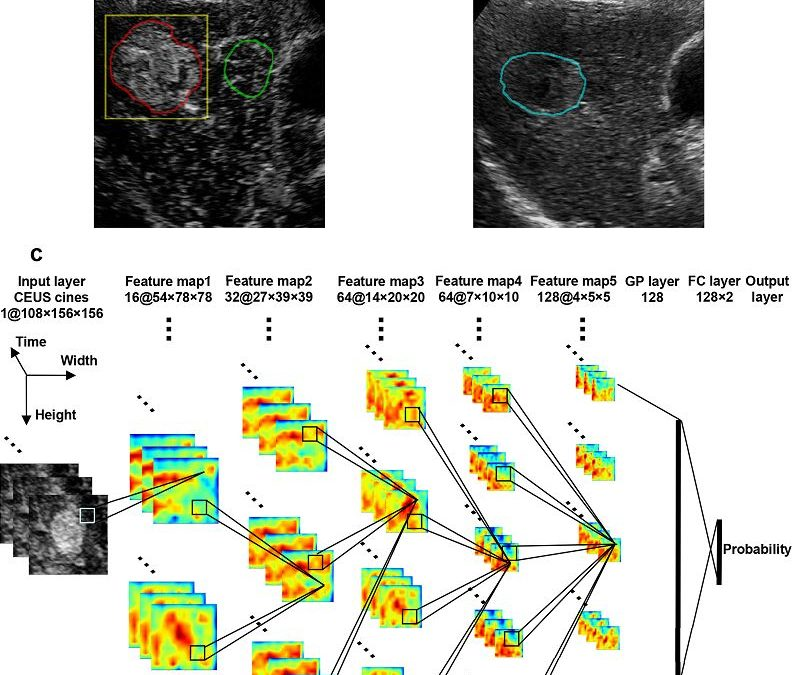 Accurate prediction of responses to transarterial chemoembolization for patients with hepatocellular carcinoma by using artificial intelligence in contrast-enhanced ultrasound