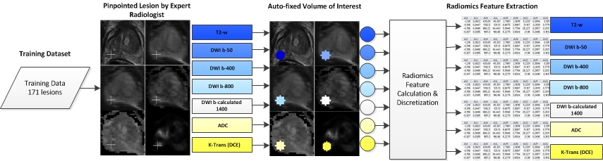 Multiparametric MRI and auto-fixed volume of interest-based radiomics signature for clinically significant peripheral zone prostate cancer
