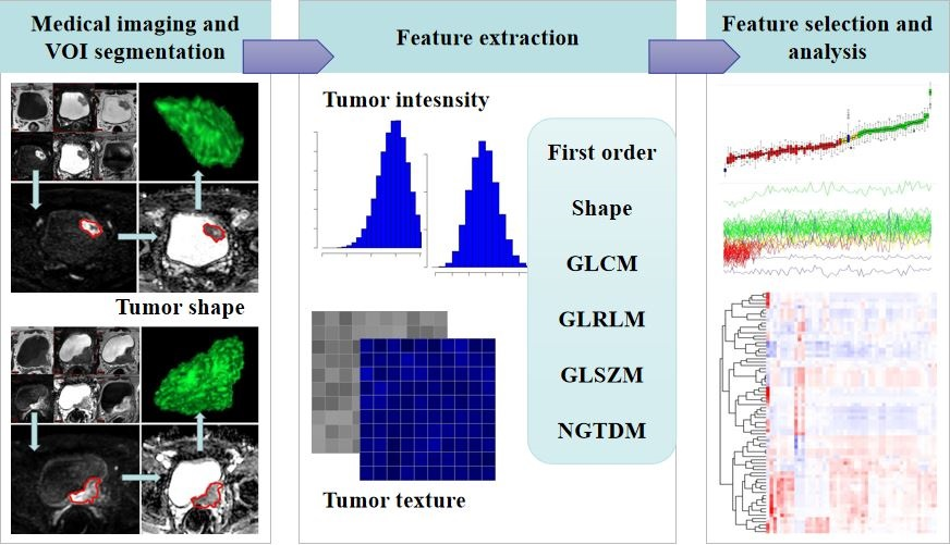 Combining DWI radiomics features with transurethral resection promotes the differentiation between muscle-invasive bladder cancer and non-muscle-invasive bladder cancer