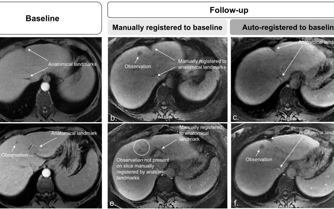 Fully automated convolutional neural network-based affine algorithm improves liver registration and lesion co-localization on hepatobiliary phase T1-weighted MR images