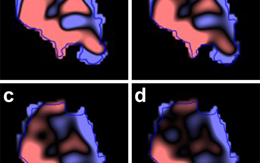 Using machine learning to predict cervical lymph node metastasis on dual-energy CT